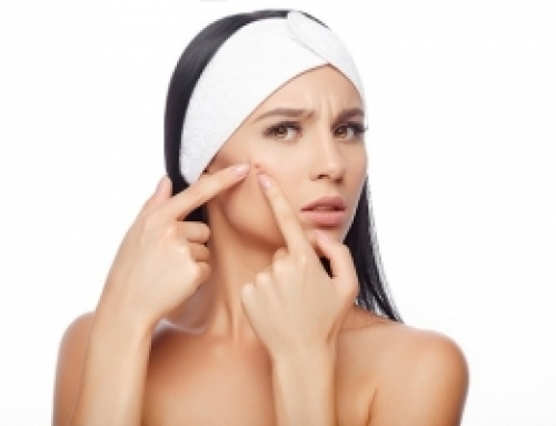 Top Tips To Get Rid Of Blackheads
