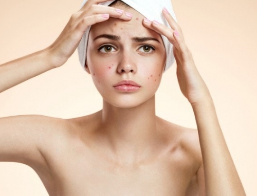 Four Common Skin Concerns and How To Treat Them