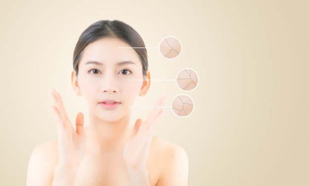 TIPS ON PREVENTION OF DRY OR DEHYDRATING SKIN