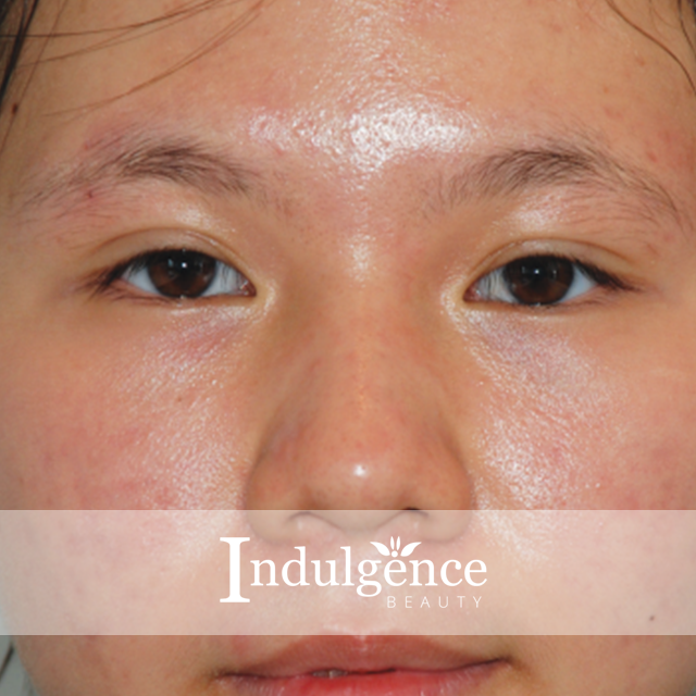Indulgence beauty results