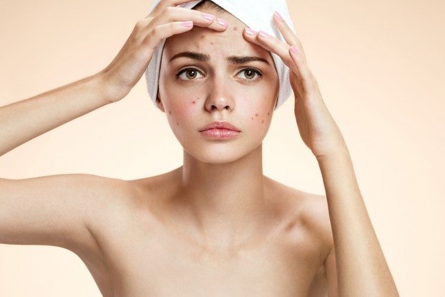 Acne treatment for different types of non inflamed acne in Singapore