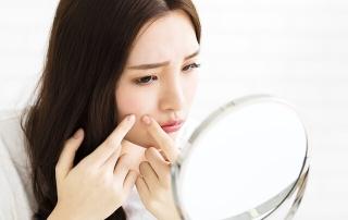 Acne Facial, Facial Promotion