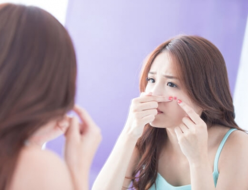 4 Home Remedies You Can Try Out For Acne & Acne Scars