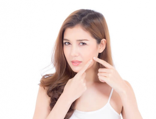 Acne Treatment: Benzoyl, Resorcinol, Salicylic Acid & Sulfur