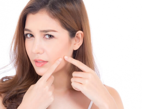 Understanding Acne: Potential Causes, Symptoms & Treatments