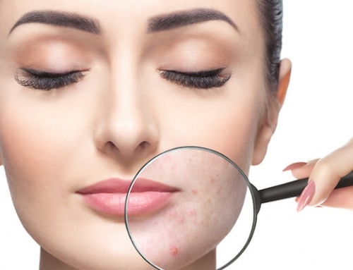 Guidelines To Manage Acne Vulgaris For Clearer Skin