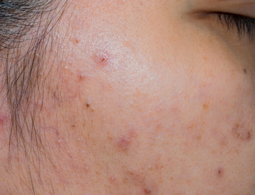 Tips On How You Can Get Rid Of Acne Scars On Your Face