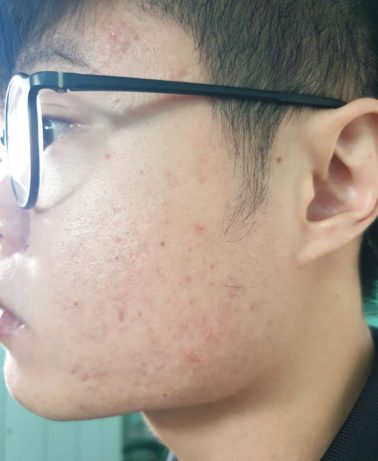 face with pimples