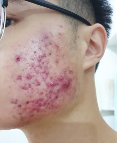 face with severe pimples