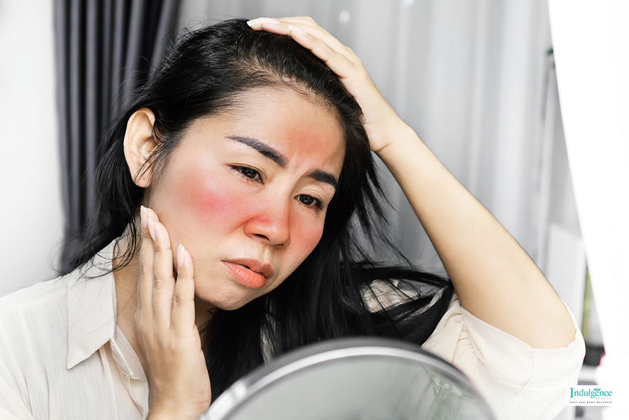 A Girl With Sensitive Skin