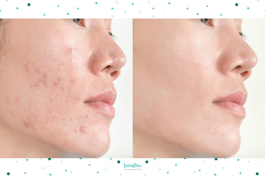 A Woman With Acne